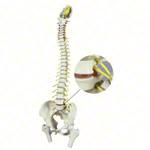 Skelett Modell - Wirbelsäule mit Bandscheibenvorfall inkl. Stativ, 80 cm
