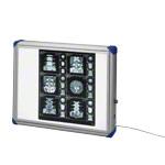 Röntgenfilmbetrachter - Röntgenfilmbetrachter 560 Mediskop, blaue Ecken