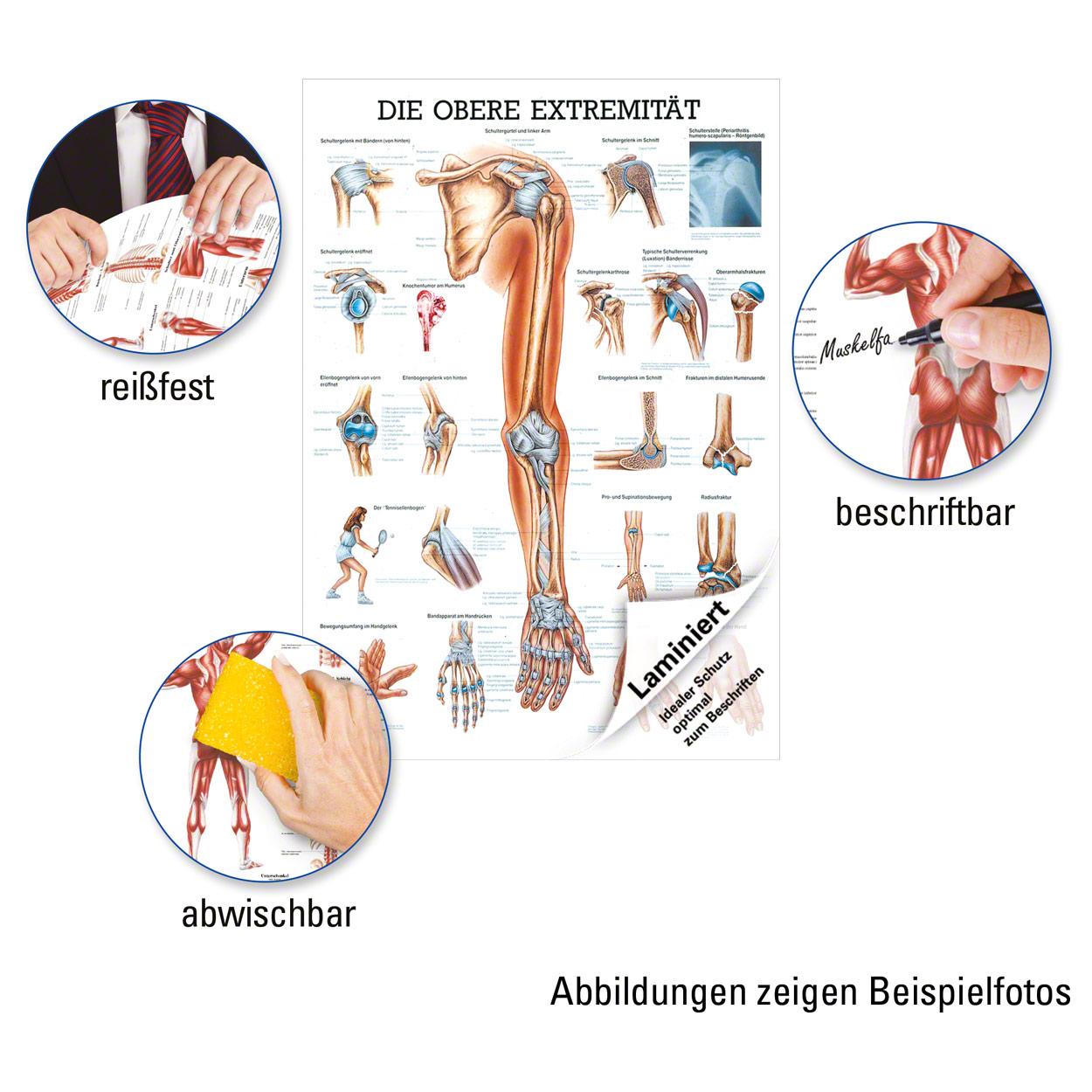 Erfreut Anatomie Obere Extremität Notizen Ideen - Menschliche ...