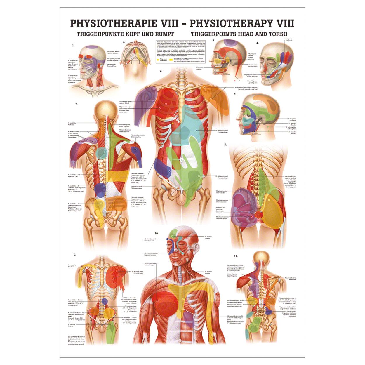 Triggerpunkte Kopf und Rumpf Poster Anatomie 70x50 cm medizinische ...