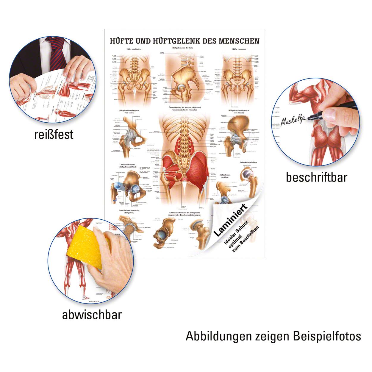 Hüfte und Hüftgelenk Lehrtafel Anatomie 100x70 cm medizinische ...