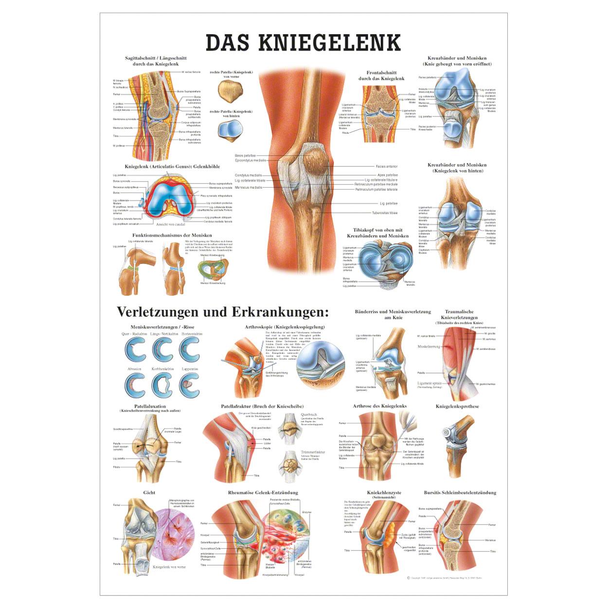 Das Kniegelenk Lehrtafel Anatomie 100x70 cm medizinische Lehrmittel ...
