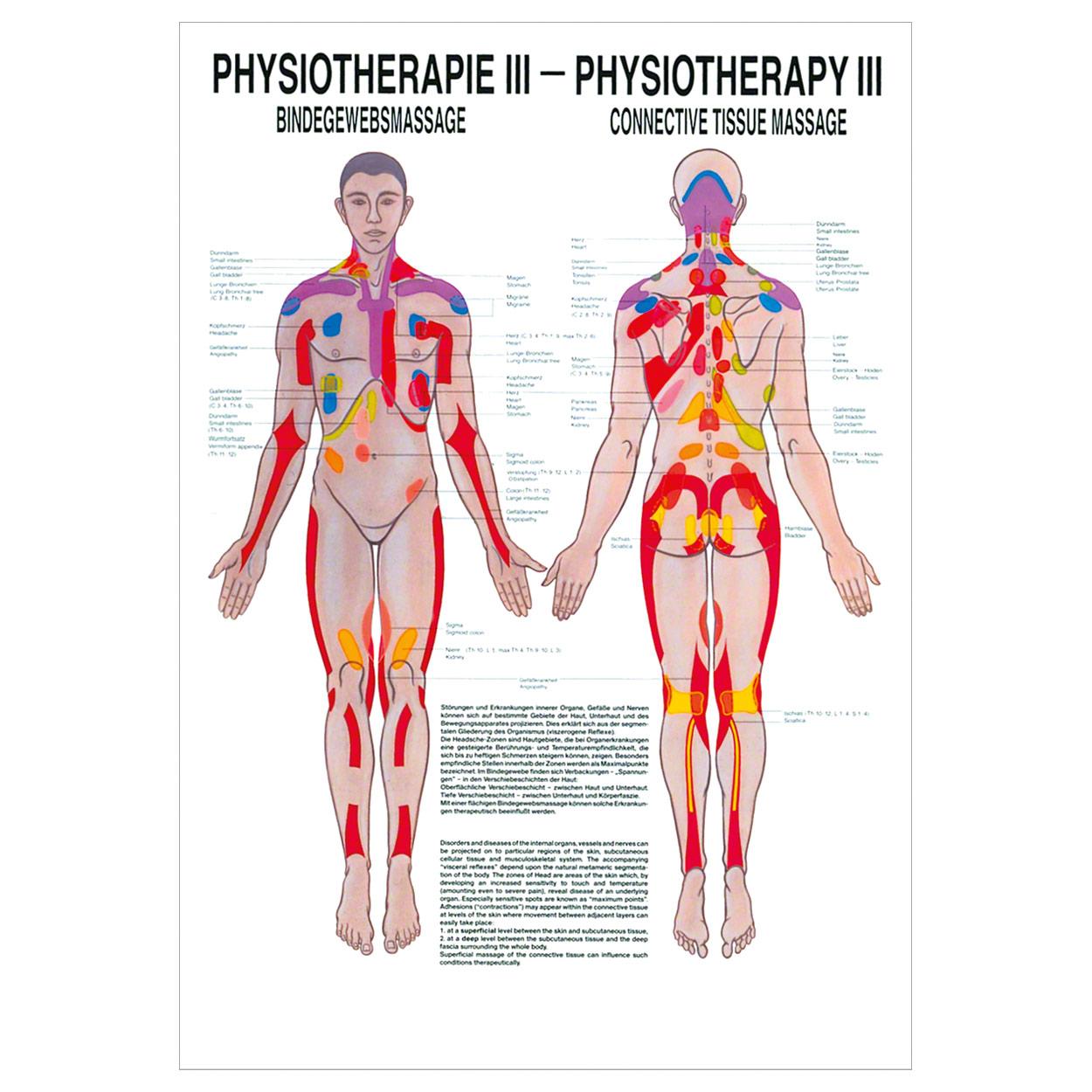 Bindegewebsmassage Poster Anatomie 70x50 cm medizinische Lehrmittel ...