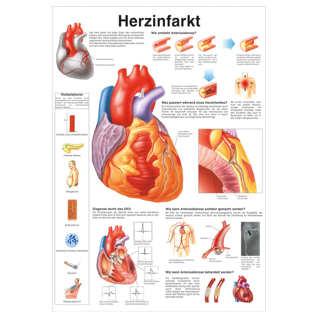 Herzinfarkt Poster Anatomie 70x50 cm medizinische Lehrmittel | eBay