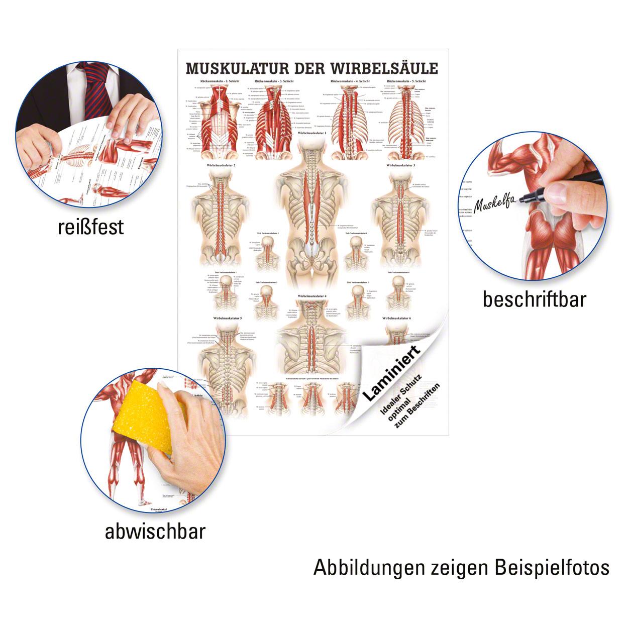 Atemberaubend Muskeln Im Oberarm Fotos - Menschliche Anatomie Bilder ...