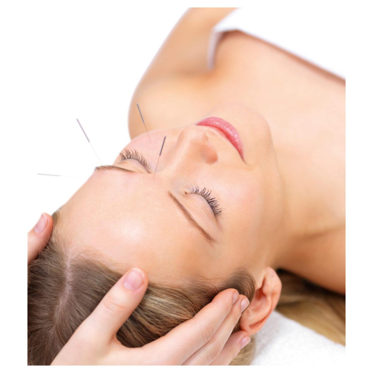 Indexbild 18 - Akupunkturnadeln mit Silbergriff, Akupunktur