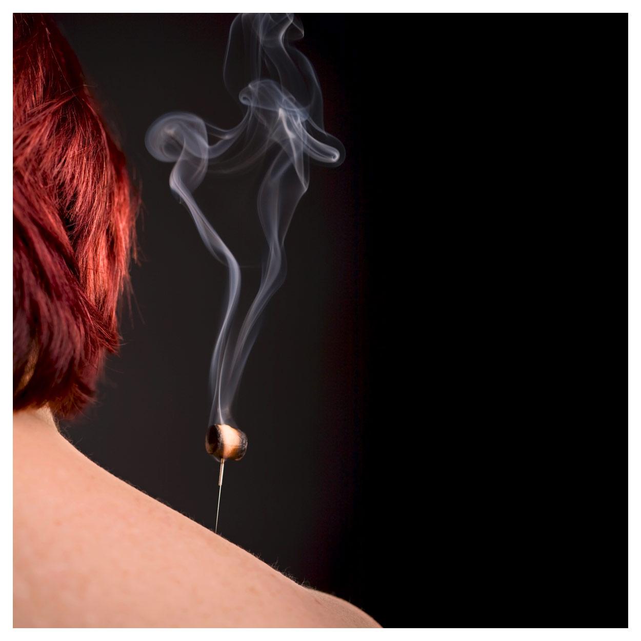 Indexbild 12 - Akupunkturnadeln mit Kupfergriff, Akupunktur