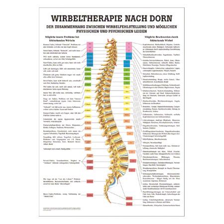 """Poster """"Wirbeltherapie nach Dorn"""", LxB 70x50 cm 25097"""