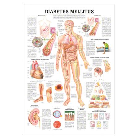 "Lehrtafel ""Diabetes Mellitus"", LxB 100x70 cm 25468"